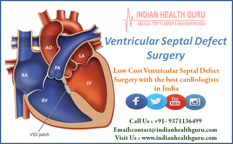 Low-Cost Ventricular Septal Defect Surgery with the best cardiologists in India