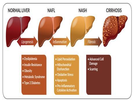 Ayurvedic Management of Non-Alcoholic Fatty Liver Disease (NAFLD)