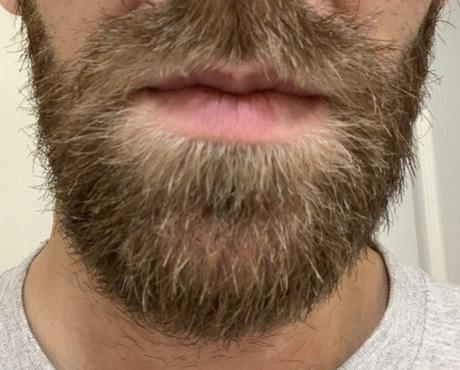 Can Harrys Tackle My Beard?