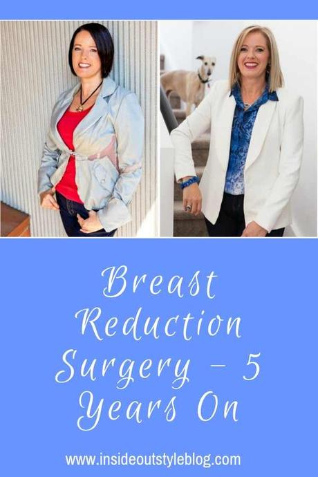 Breast Reduction Update – 5 Years On