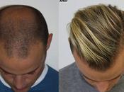 Crown Hair Transplant Dubai Clinic