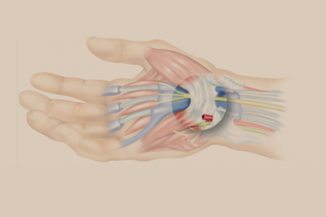 6 Tips for Preventing Carpal Tunnel