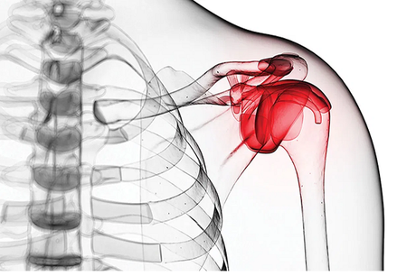 Treatment of Frozen Shoulder in Ayurveda