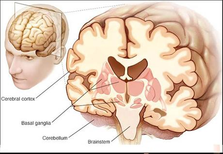 Supranuclear Palsy,Causes,Diagnosis,Symptoms and Treatment in Ayurveda