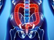 What Symptoms, Causes, Diagnosis Best Alternative Treatment Pancolitis?