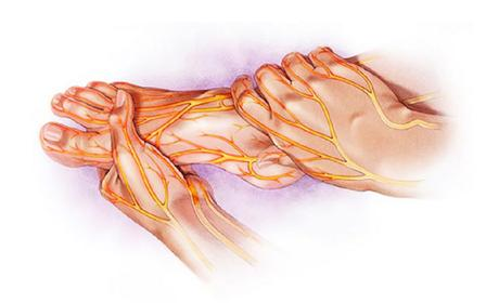 Suffering From Diabetic Neuropathy ? Try These Natural Remedies