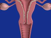Treatment Ovarian Cysts Ayurveda