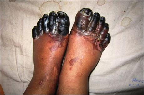 Gangrene – Symptoms and Ayurvedic Treatment