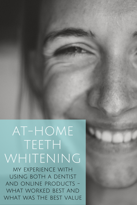 My At-Home Teeth Whitening Experience