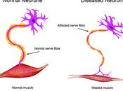 Motor Neurone Disease Treatment Ayurveda