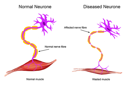 Motor Neurone Disease Treatment in Ayurveda