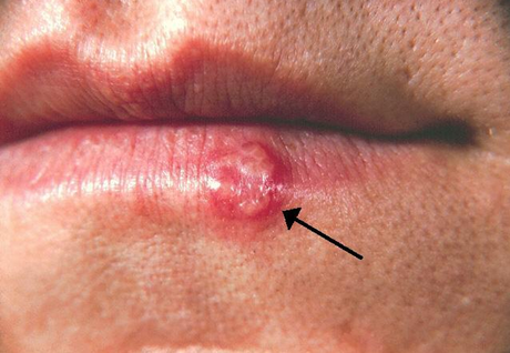 Natural Treatment for Herpes Simplex Virus Infection (Herpes)