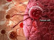 Positive Mindset Beat Cancer?