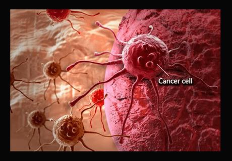 Can a Positive Mindset Beat Cancer?