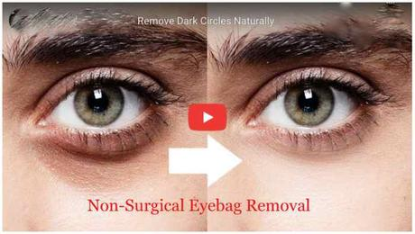 Eye Bag Removal : How To Remove Eye Bags Permanently Shocking!