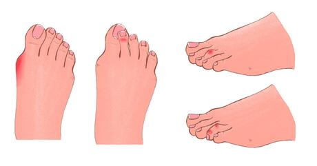 Bent and Crooked Toes: Tips for Treatment and Prevention