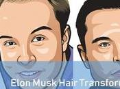 Elon Musk Hair Loss Recovery Story [Transformation]