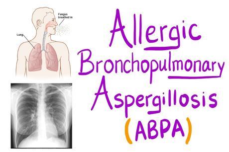 Alternative Treatment for Allergic Bronchopulmonary Aspergillosis (ABPA)