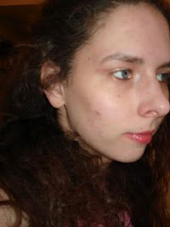 My Skincare Odyssey