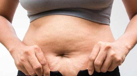 Trusted Tips and Treatment for Stretch Marks Removal