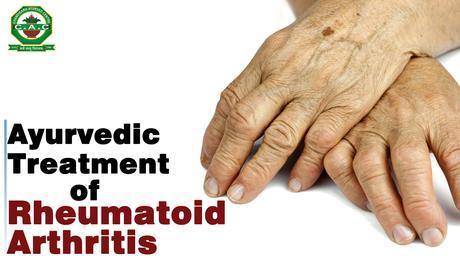 akik kezelik a rheumatoid arthritist