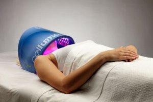 Reduce Acne, Remove Age Sports, Wrinkle & Marks With LED Light Facials
