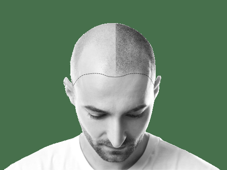 How To Find The Right Scalp Micro-pigmentation Clinic Near You