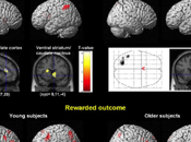 Brain Correlates Muting Emotions Age.