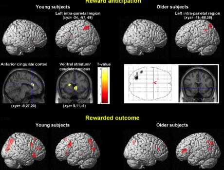 Brain correlates of the muting of our emotions as we age.