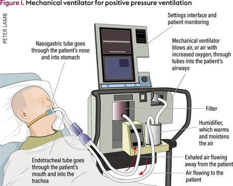 Remember the ventilator