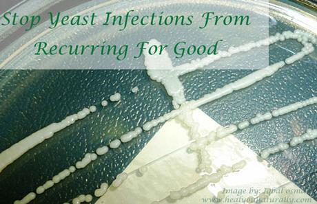 The Best Kept Secret To Get Rid of a Yeast Infection For Good  And How to Get Instant Relief