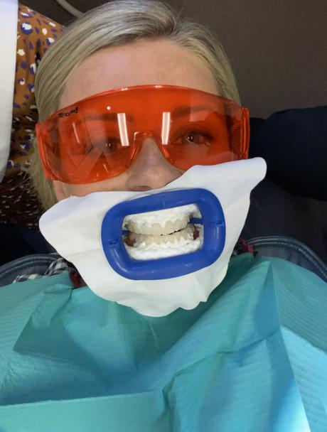 Road test: Philips Zoom Teeth Whitening