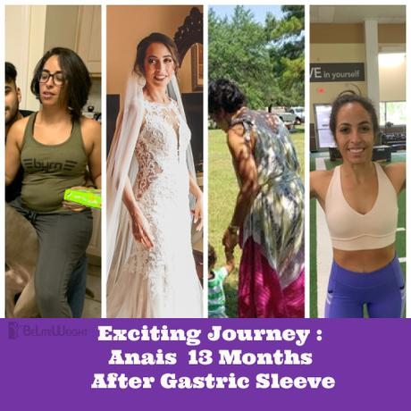 Exciting Journey : Anais 13 Months After Gastric Sleeve