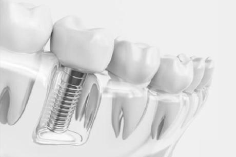 How Many Dental Implants Will I Need?