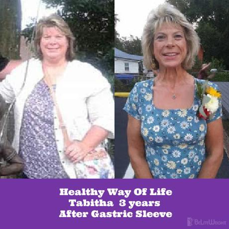 Healthy Way Of Life:Tabitha 3 years After Gastric Sleeve