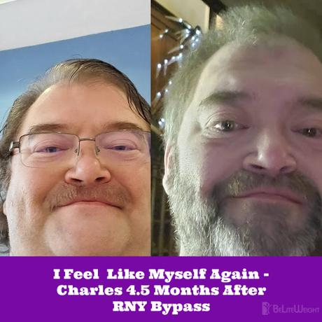 I Feel  Like Myself Again – Charles 4.5 Months After RNY Bypass
