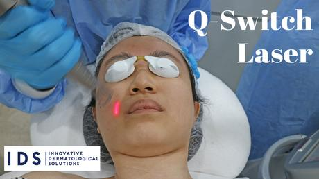 How I Reduce Pigmentation with Q Switch Laser Treatment | IDS Clinic