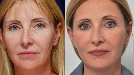 What is a Facelift? Should You Go For It?