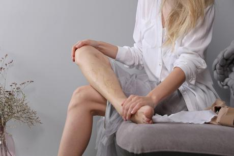 Early Symptoms of Spider Veins – Things You Should Never Ignore