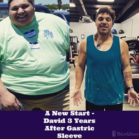 A New Start – David 3 Years After Gastric Sleeve