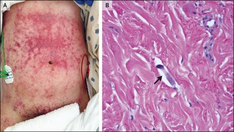 Treatment of Strongyloides stercoralis hyperinfection syndrome