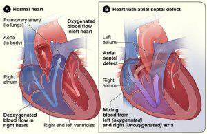 What Congenital Heart Defects Might My Family of Women Suffer From?