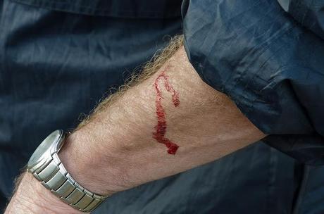 bleeding arm