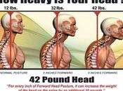 Craniocervical Instability Surgery: Only Option
