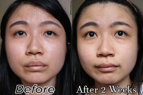 Brighten Your Skin with Face Republic Vita Glow Toning Cream & Vita Capsule Luminous Serum