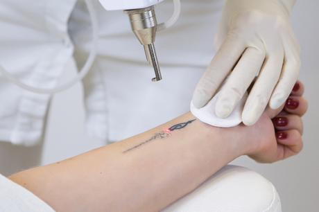 Visit The Best Laser Tattoo Removal Service For Quick Removal