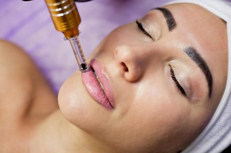 Tips for No Needle Lip Filler Augmentation