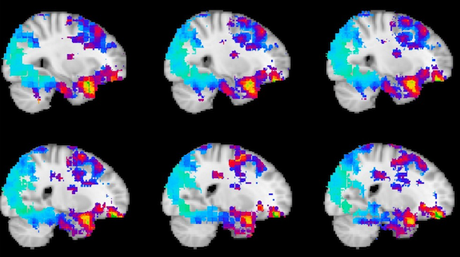 Watching brain regions that help us anticipate what's going to happen next.