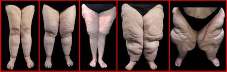 Heavy hips and legs – could you have lipedema?
