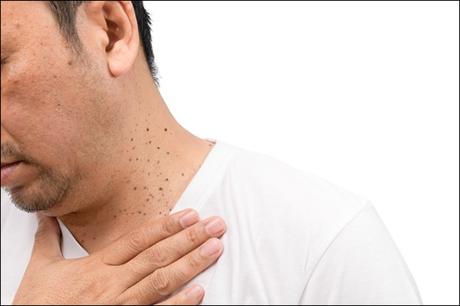 Ayurvedic Treatment of Seborrheic Keratosis
